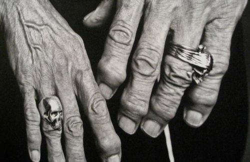 Keith Richards Hand Arthritis