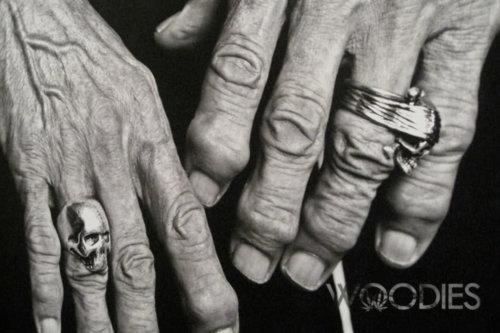 hand-arthritis-1